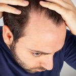 【男女別】頭皮の乾燥を防ぐおすすめの頭皮保湿ローション・オイルランキング