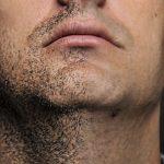 髭脱毛してから抜けるまでの期間は?「どろぼうひげ」の謎と一緒に徹底解説