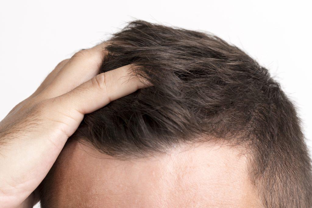 【2020】おすすめの頭皮マッサージ器ランキングTOP5【口コミ付】