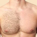 胸毛脱毛の方法は?おすすめクリニック・サロンや自宅での処理方法をご紹介!